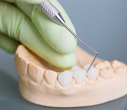 implant dentistry in North Charleston